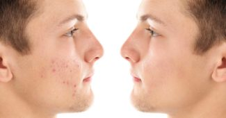To ansigter af samme person med og uden akne